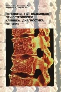 Переломы тел позвонков при остеопорозе. Клиника, диагностика, лечение